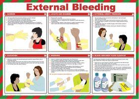 7291 External Bleeding Poster
